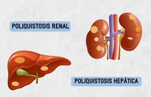 Quistes en el riñón, la causa más frecuente de insuficiencia renal hereditaria