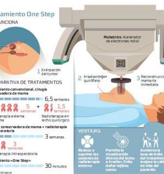 Radioterapia intraoperatoria, aliada del cáncer de mama